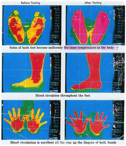 The principles of Reflexology, the Meridians and quantum physics of